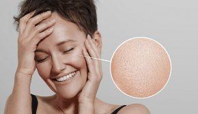 Как избавиться от жирной кожи